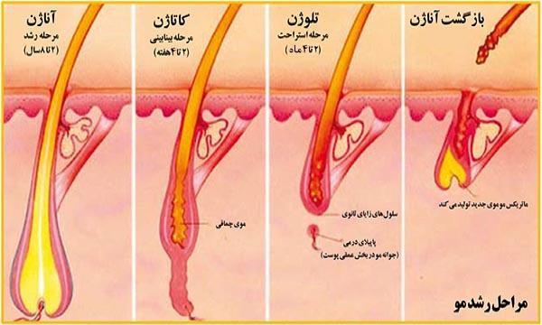 نتیجه تصویری برای لیزر درمانی فولیکول موبدن و صورت
